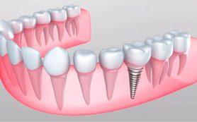 Восстановление зубов в Москве: профессиональная клиника Имплант Лаб