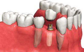 Имплантология: Имплантология, стоимость