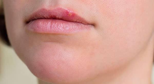 Как избавиться от простуды на губах?