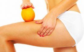 Как избавиться от «апельсиновой корки» на ягодицах
