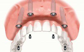 Балочный протез на имплантах