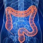 Развитие волчанки связано с кишечными бактериями