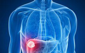 На токсины в печени указывают невозможность похудеть, желтая кожа, зуд и проблемы с выделительной системой