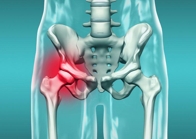 Причины и факторы риска перелома кости