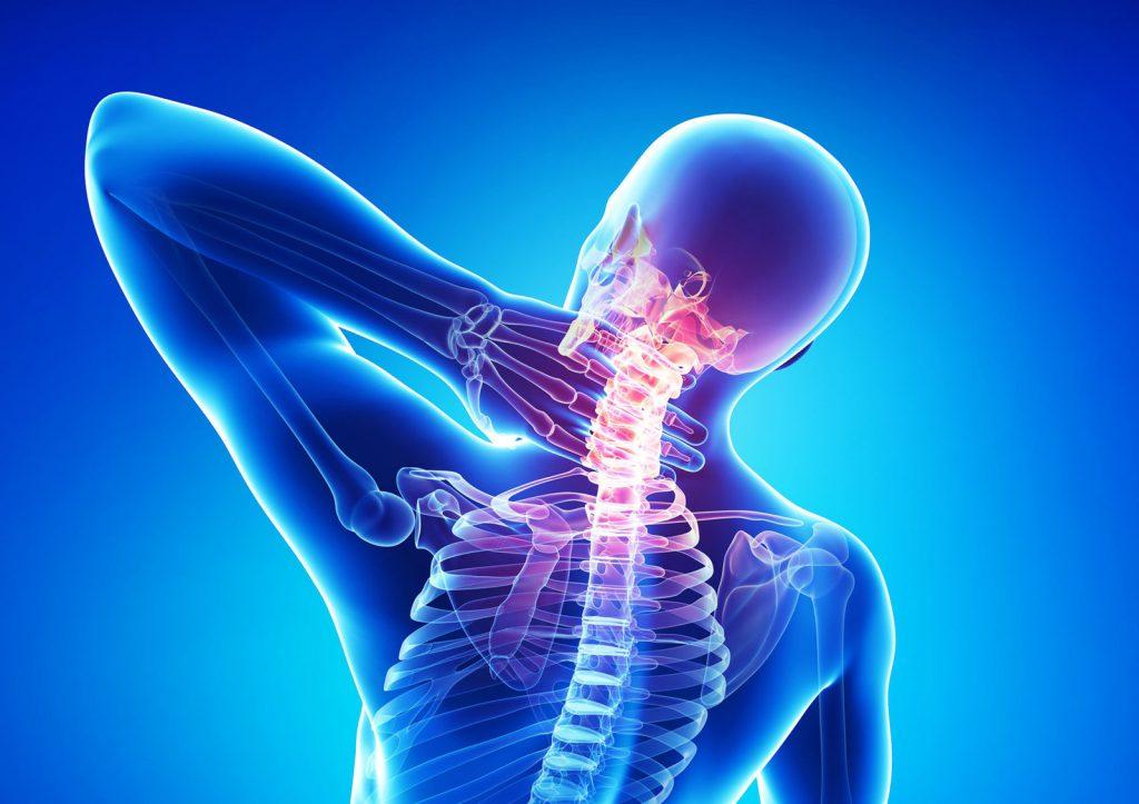 Шейный остеохондроз: причины и лечение