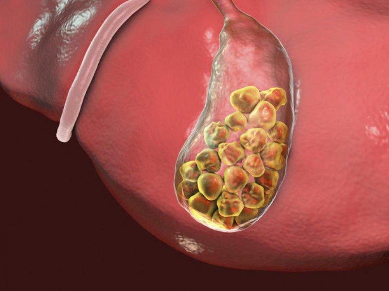 Насколько опасны диеты при желчекаменной болезни