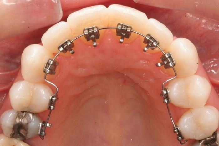 Что такое ортодонтия зубов: показания и способы лечения