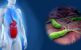 Натуральные средства для лечения язвы двенадцатиперстной кишки