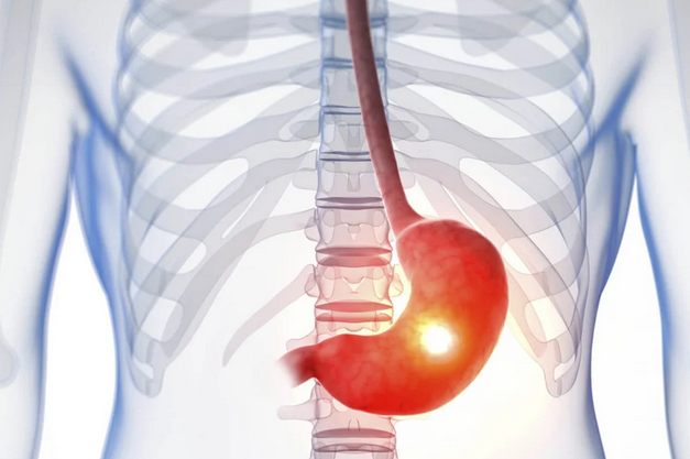 Бывает нетипичной: как распознать язву желудка