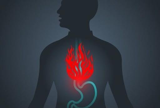 7 натуральных средств от изжоги и кислотного рефлюкса