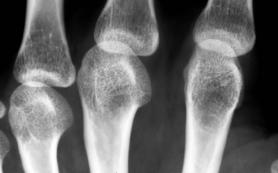 Остеопороз на рентгене: признаки и степени проявления