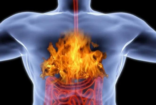 Названы продукты, вызывающие изжогу