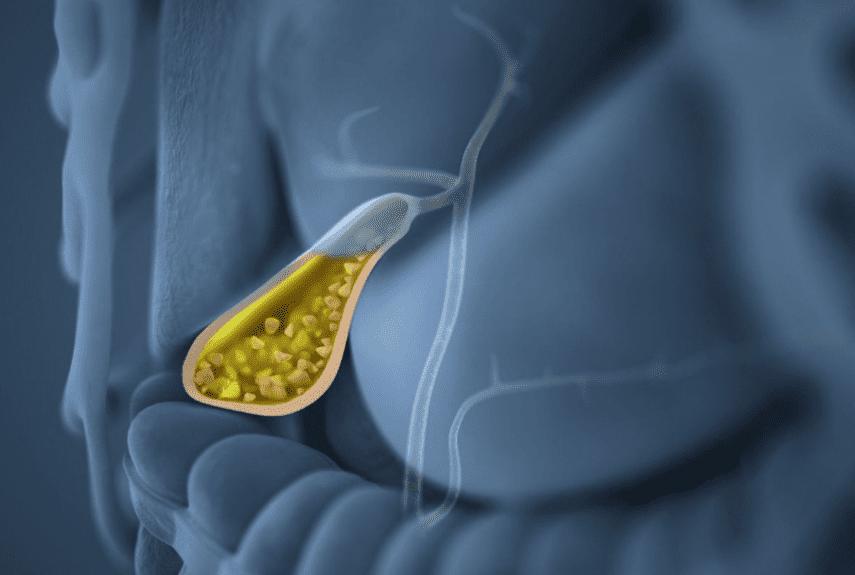 5 травяных сборов для снятия воспаления при холецистите