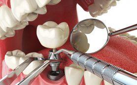 Классическая имплантация — проверенный и качественный метод