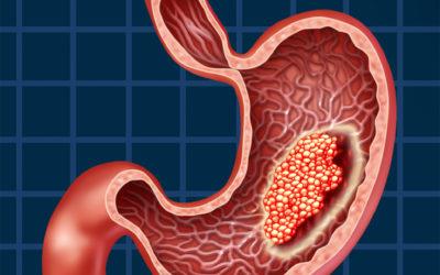 Лечение рака ЖКТ передовыми методами