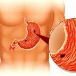 Обнаружена связь между возбудителем язвенной болезни и диабетом