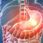 Исследование: что помогает предотвратить развитие язвы и рака желудка