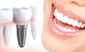 Зубные импланты: виды, стоимость, преимущества и недостатки материалов