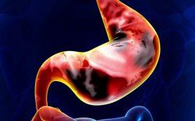 Главные симптомы рака желудка