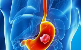 Медики рассказали об аномалии, способной вызывать рак желудка