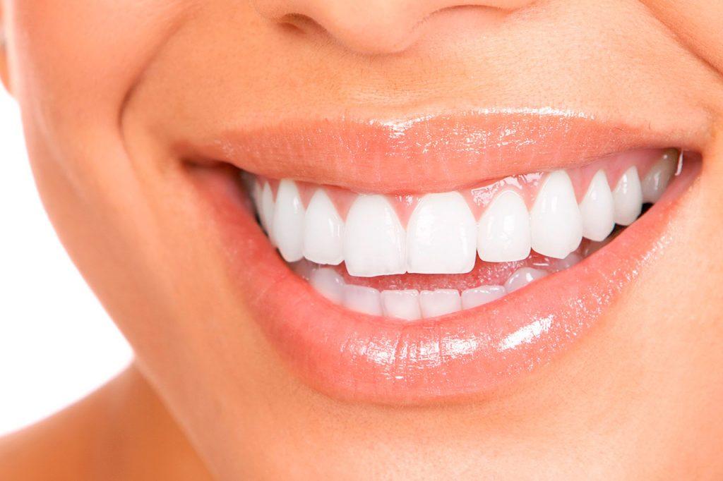 Как отбеливать зубы?