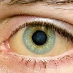 Почему белки глаз желтеют: названы неожиданные причины