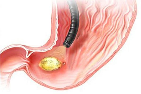Язва желудка: причины заболевания и первые симптомы