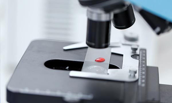 Кому показан и для чего сдают анализ крови на 25-он-витамин D?