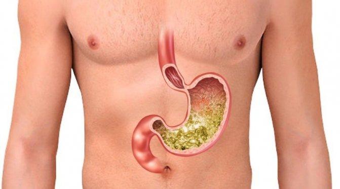 Изжога и повышенная кислотность: продукты, вызывающие эти проблемы