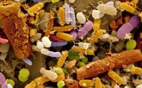 Причины дисбактериоза кишечника