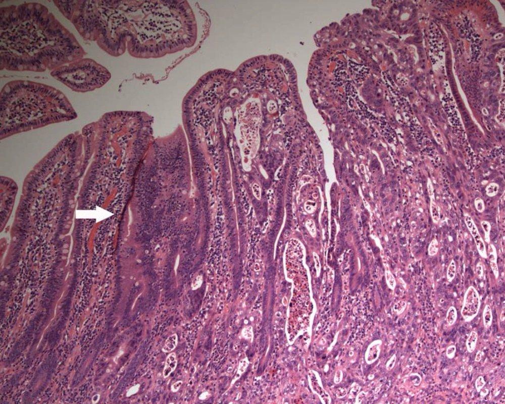Ученые вырастили клетки тонкого кишечника человека