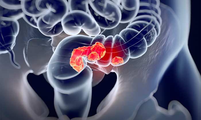 Как быстро и удобно диагностировать рак кишечнике