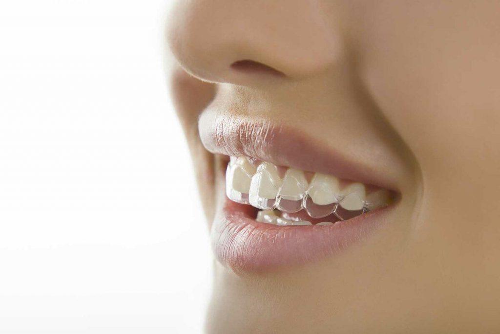 Как выравнивать зубы без брекетов в Киеве