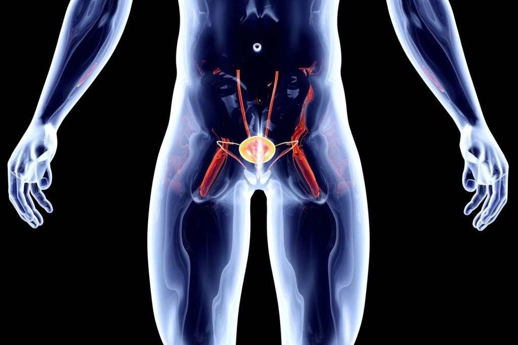 Опухоль простаты встречается все чаще у мужчин за 50