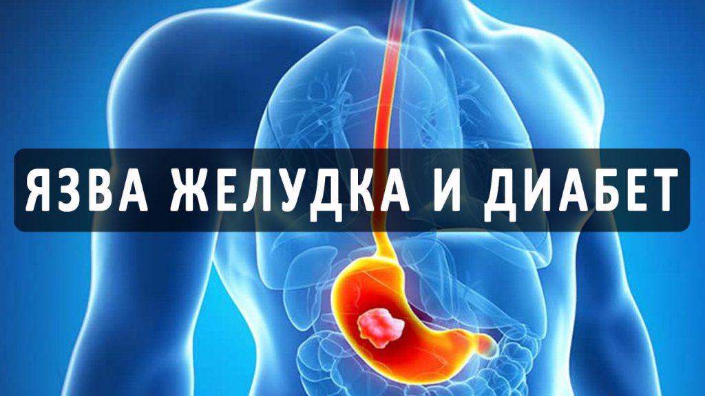 Особенности язвы желудка при заболевании диабетом