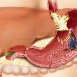 Обострение гастрита: проверенные методы профилактики