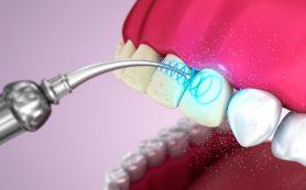 Показания для ультразвуковой чистки зубов