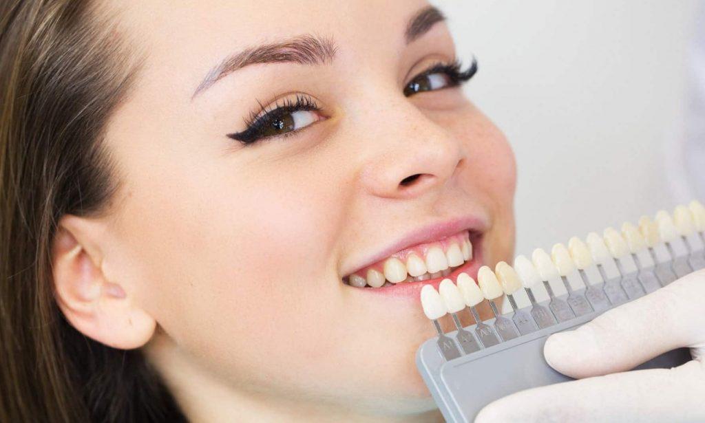 Доступные услуги по отбеливанию зубов