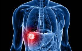Рак печени – симптомы