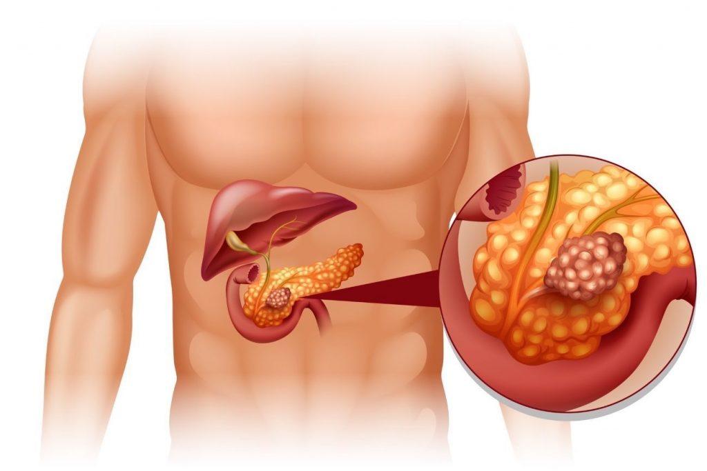 Питание при камнях в поджелудочной железе