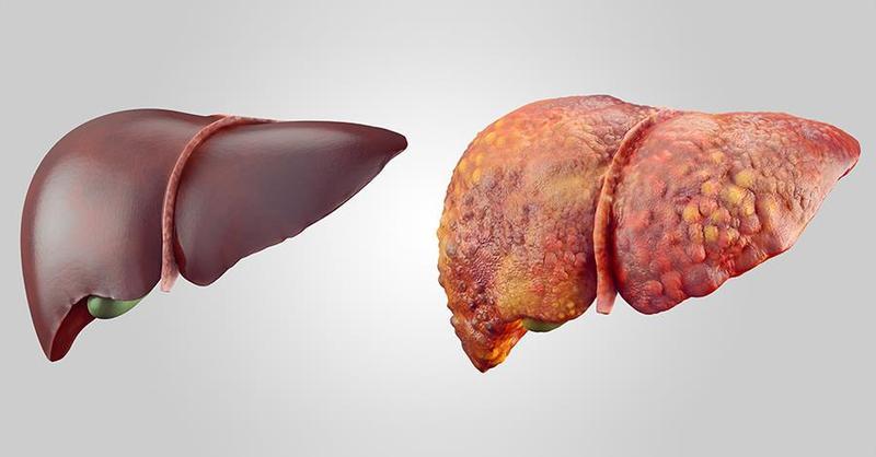 5 натуральных настоев, которые помогут при ожирении печени