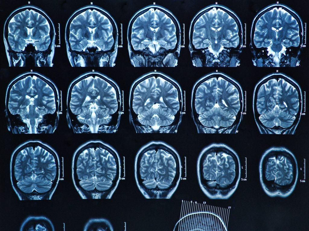 МРТ и КТ в диагностике
