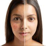 Современные технологии в косметологии