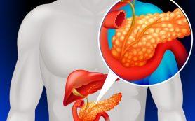 Классические симптомы воспаления поджелудочной железы