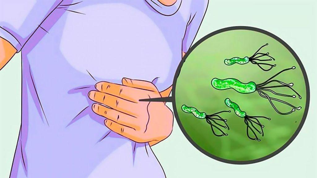 Как усилить секрецию желудочного сока: 5 натуральных средств