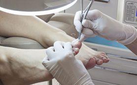 Удаление вросшего ногтя: особенности и эффективные методы